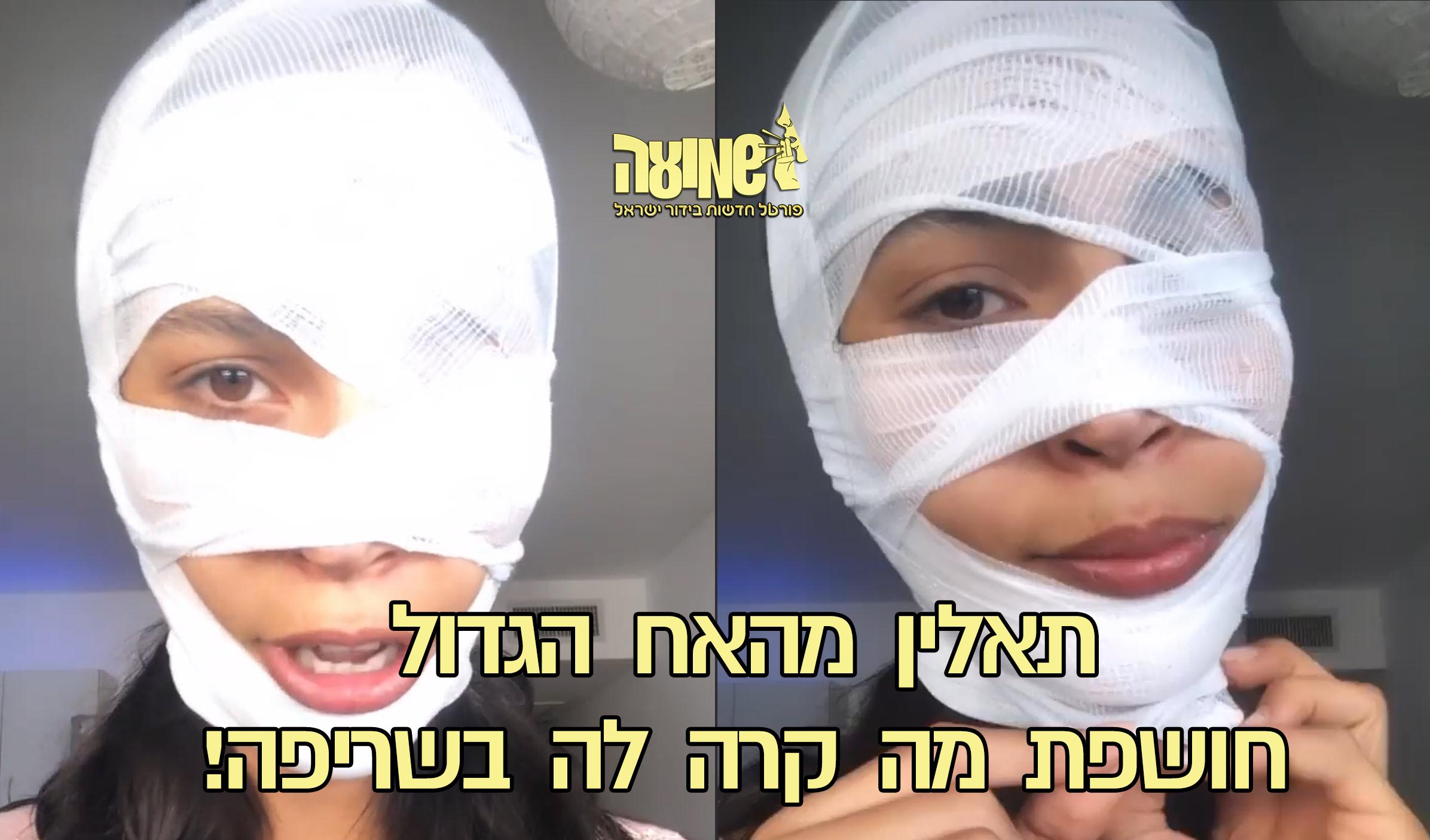 """תאלין אבו חנאן נחשפת לאחר השריפה:""""זה מה שהשם רצה"""" ויש לה מסר!"""