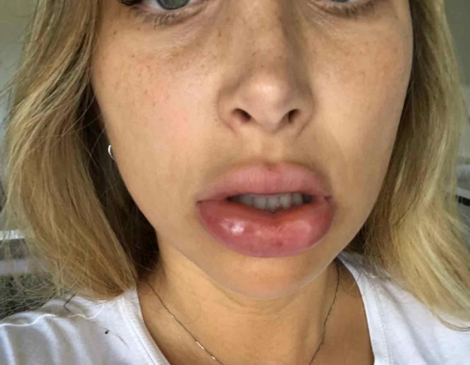 אוי לא: מה קרה לשפתיים של מעיין אשכנזי!?